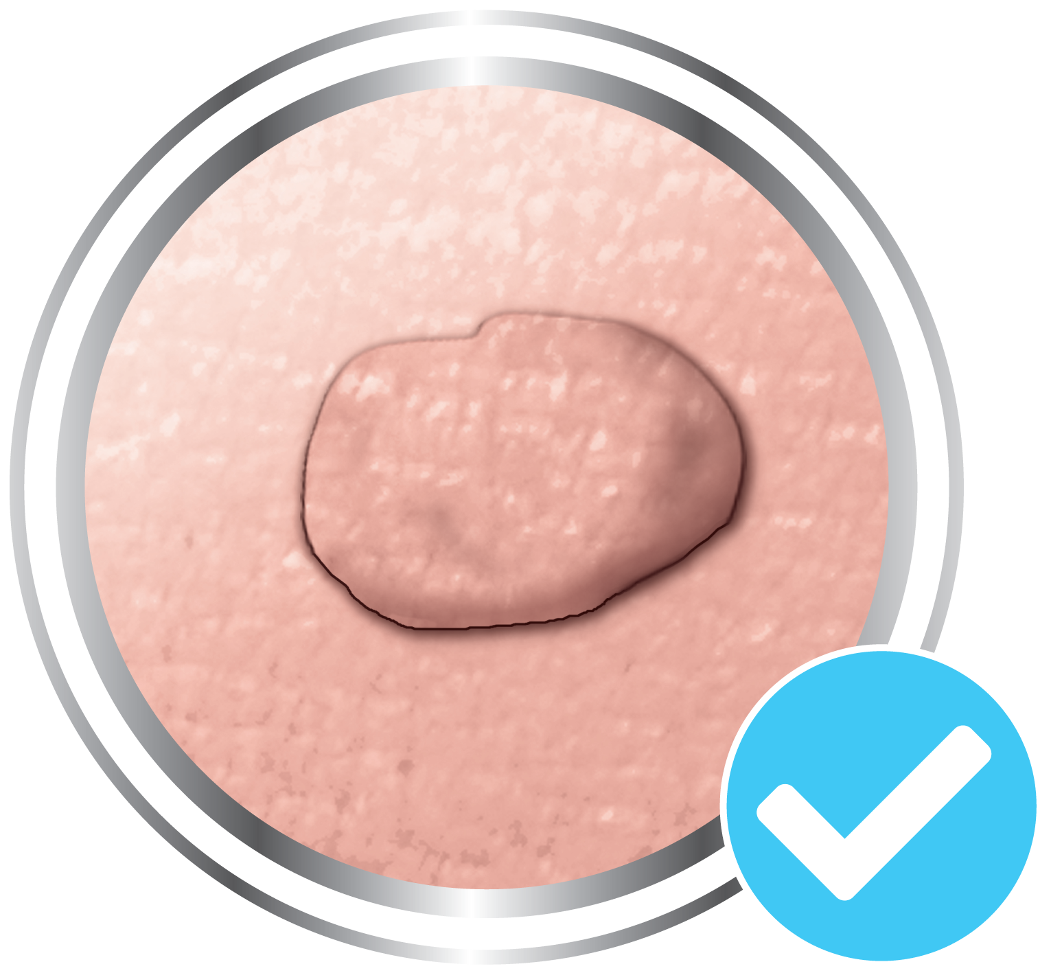 Skin tag is the same colour as surrounding skin