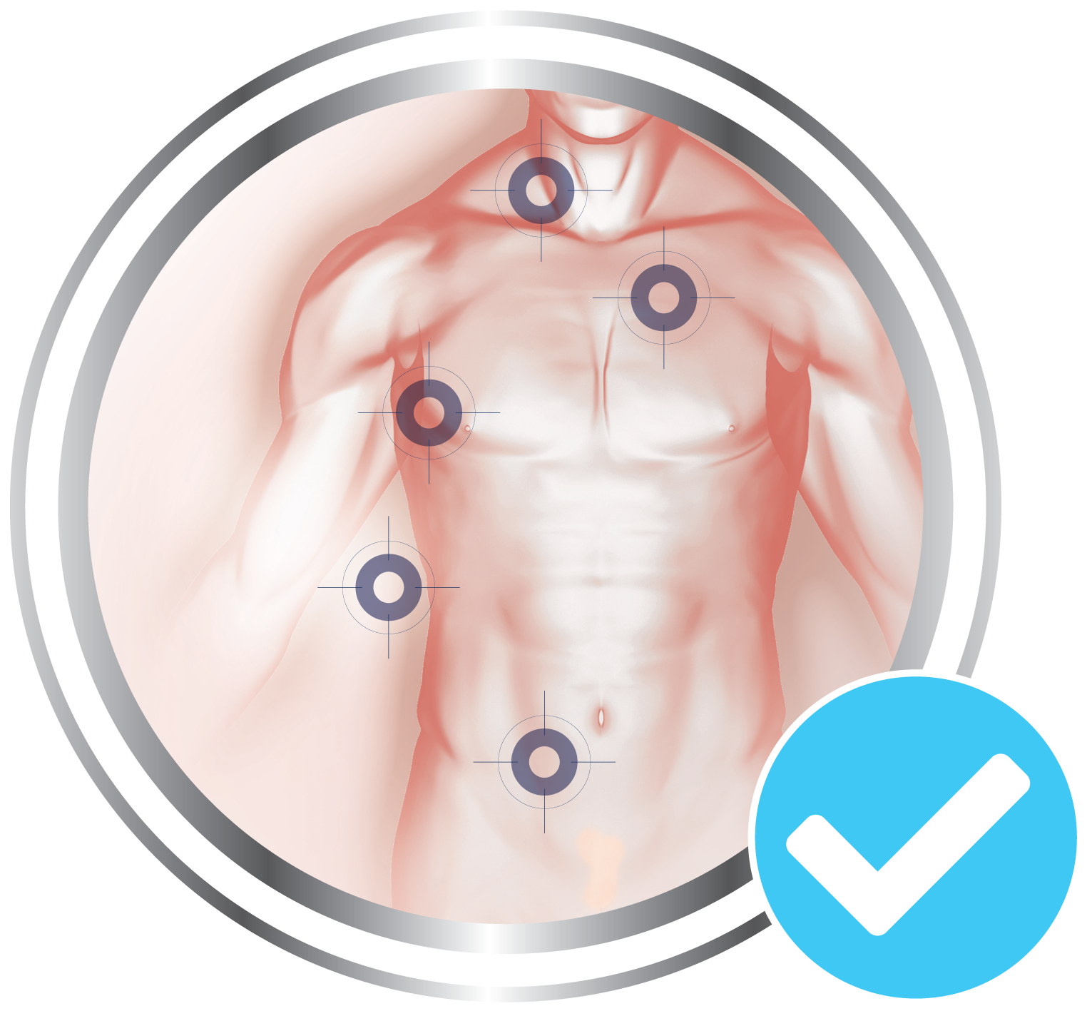 5 locations to be treated by Cryotag skin tag remover